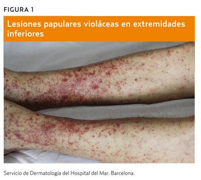 petequias por virus