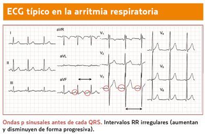 Ninos en de 10-12 anos cardiaca frecuencia