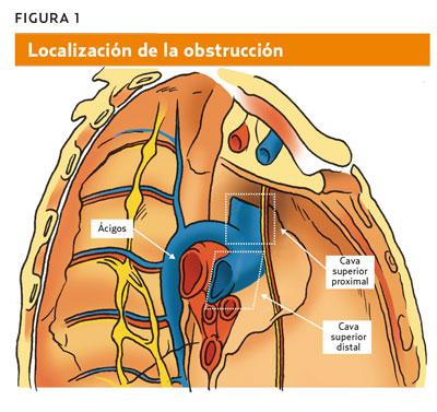 El síndrome de la vena cava superior (AMF 2013) A partir de un síntoma