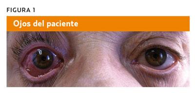 Queratoconjuntivitis herpética emedicina hipertensión