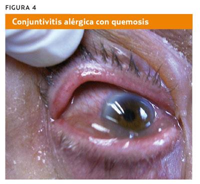 dolor globo ocular derecho