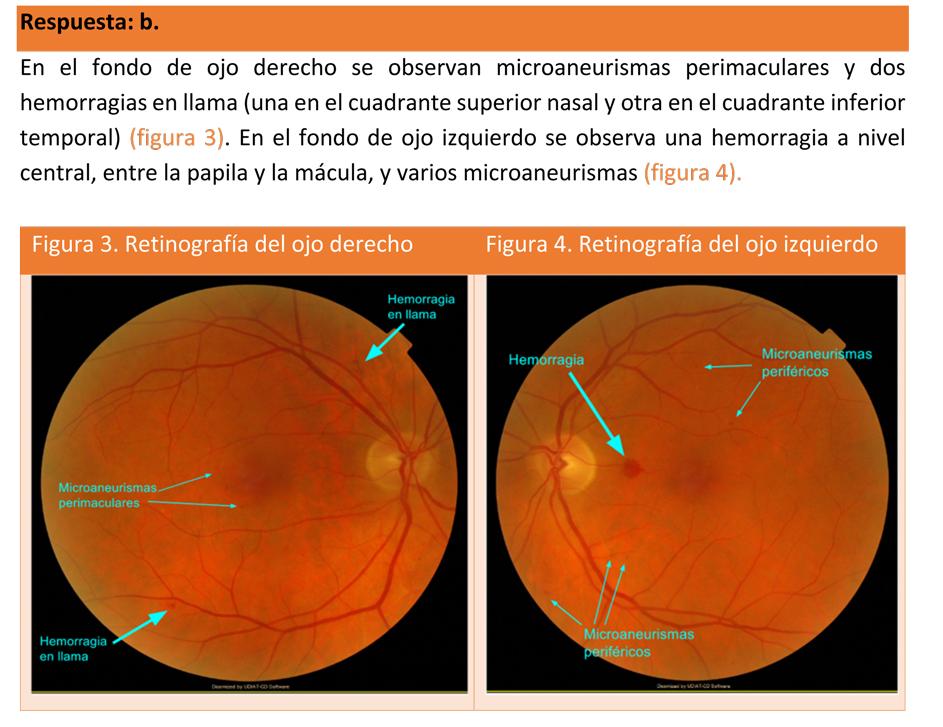 unas manchas en la retinograf u00eda  amf 2017  el reto de la