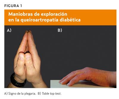 etiología de diapositivas de diabetes ppt