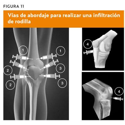 Prueba de derrame articular rodilla