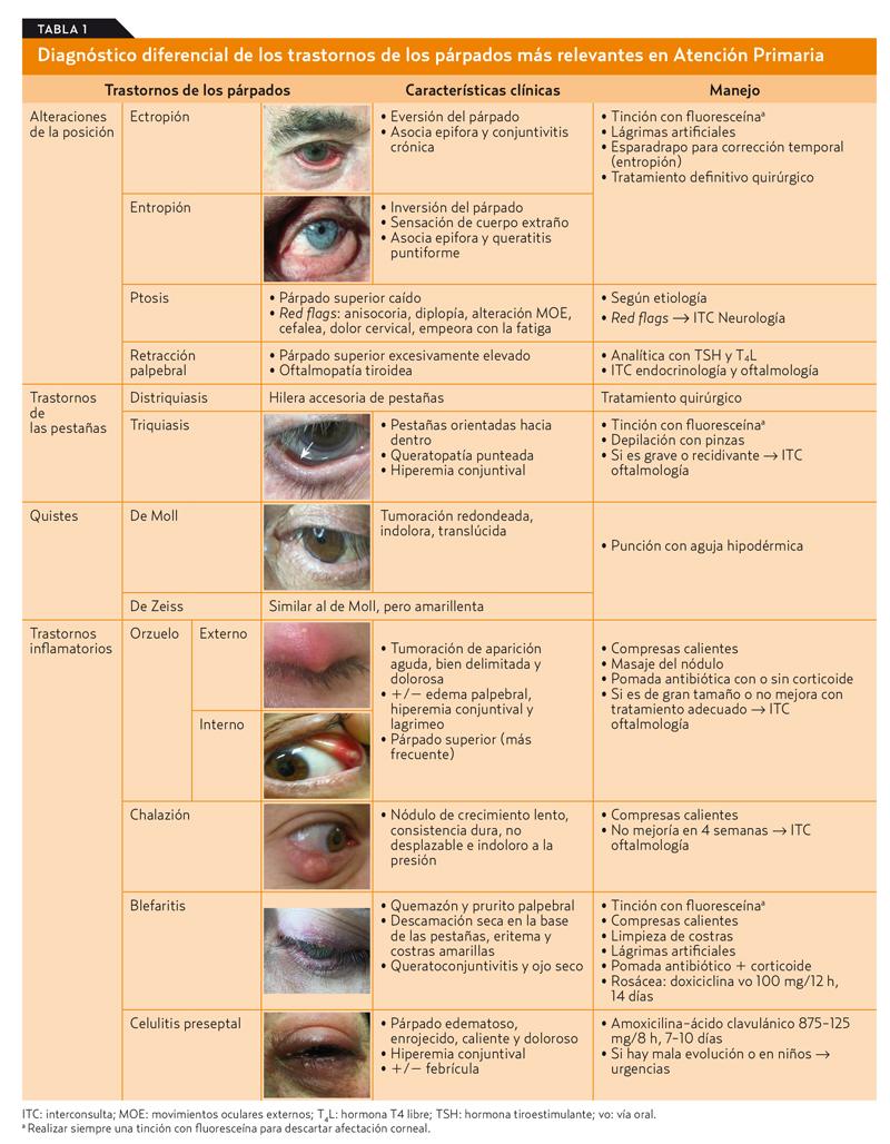celulitis preseptal pediatría