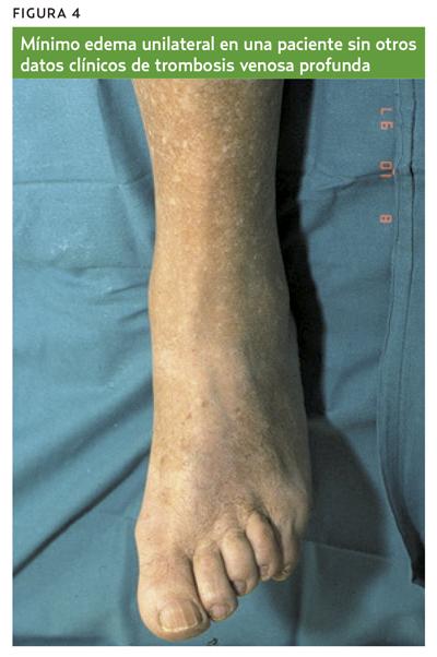 trombosas venause superficielle síntomas de diabetes